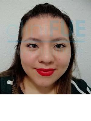 Diandra 22 Barcelona trasplante capilar femenino 12 meses
