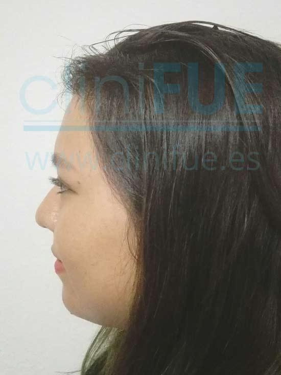 Diandra 22 Barcelona trasplante capilar femenino 5 meses
