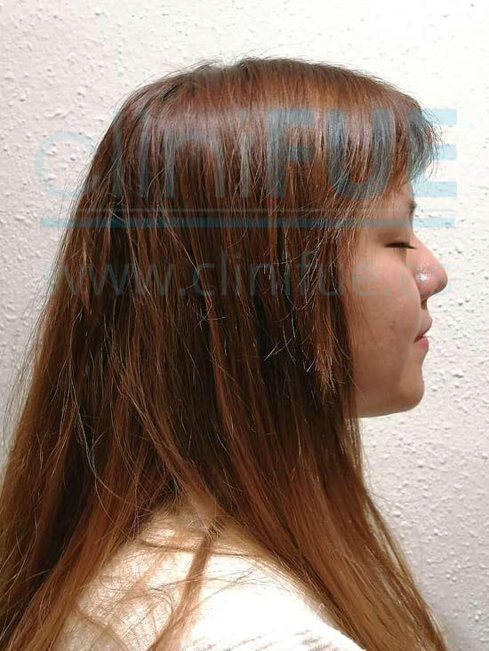 Diandra 22 Barcelona trasplante capilar femenino 8 meses
