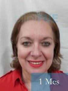 M-Angeles-52-Cadiz-trasplante-capilar-femenino-turquia-1-mes-1