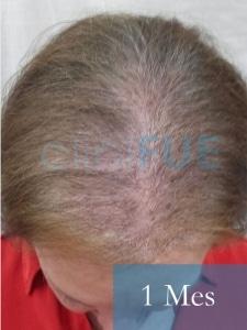 M-Angeles-52-Cadiz-trasplante-capilar-femenino-turquia-1-mes-3