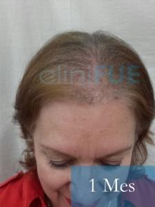 M-Angeles-52-Cadiz-trasplante-capilar-femenino-turquia-1-mes-2
