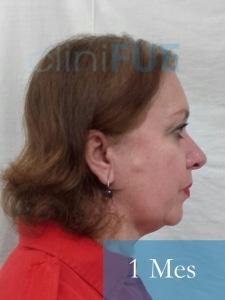 M-Angeles-52-Cadiz-trasplante-capilar-femenino-turquia-1-mes-4