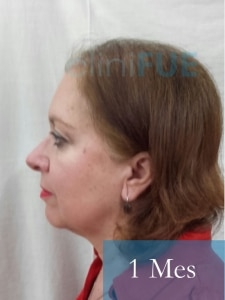 M-Angeles-52-Cadiz-trasplante-capilar-femenino-turquia-1-mes-5