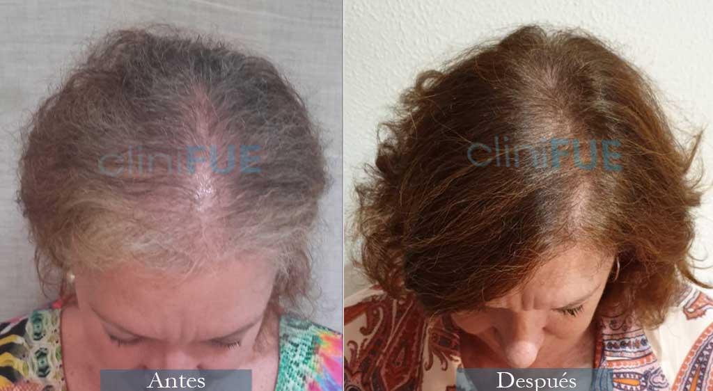 Trasplante capilar de Maria Angeles 52 Años de Cadiz con cliniFUE