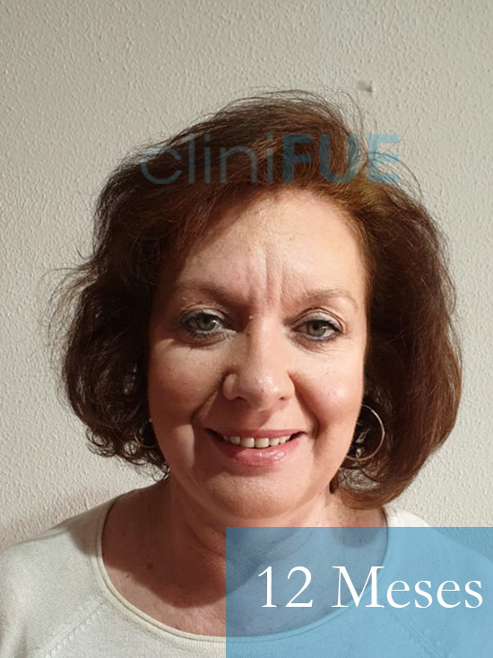 M-Angeles-52-Cadiz-trasplante-capilar-femenino-turquia-12-meses-1