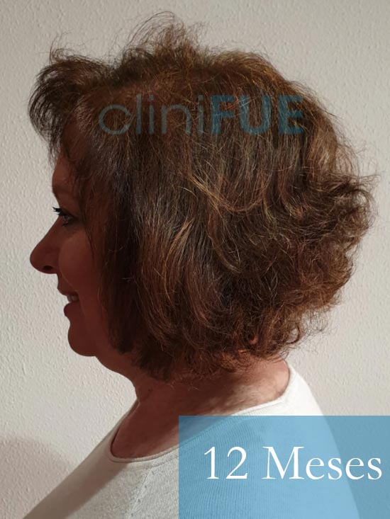 M-Angeles-52-Cadiz-trasplante-capilar-femenino-turquia-12-meses-4