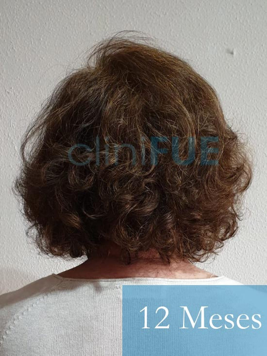 M-Angeles-52-Cadiz-trasplante-capilar-femenino-turquia-12-meses-5