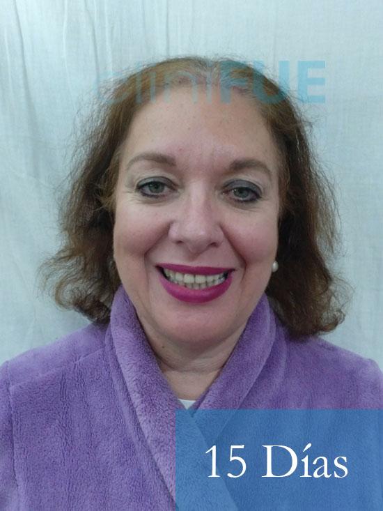 M-Angeles-52-Cadiz-trasplante-capilar-femenino-turquia-15-dias-1