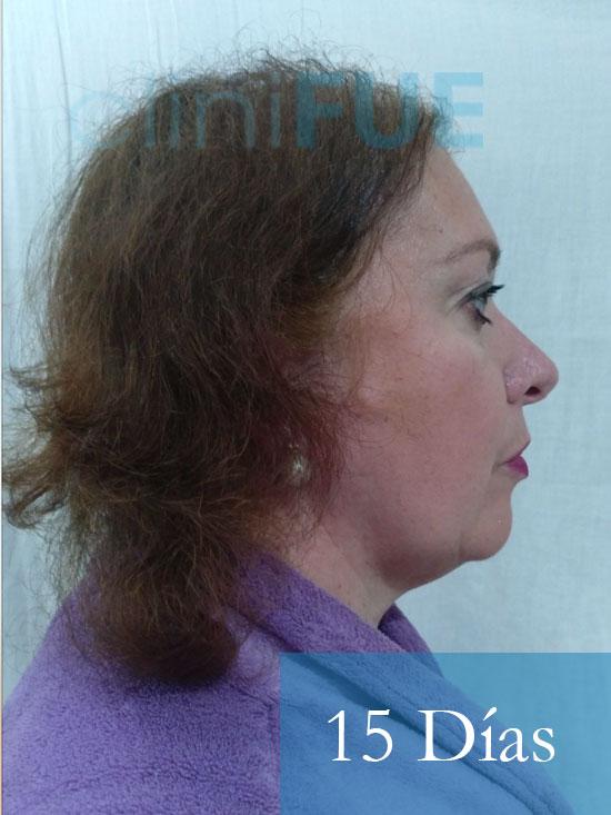 M-Angeles-52-Cadiz-trasplante-capilar-femenino-turquia-15-dias-4