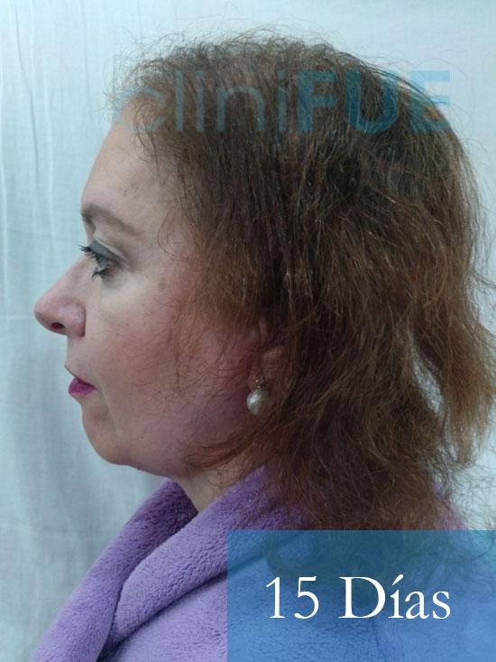 M-Angeles-52-Cadiz-trasplante-capilar-femenino-turquia-15-dias-5