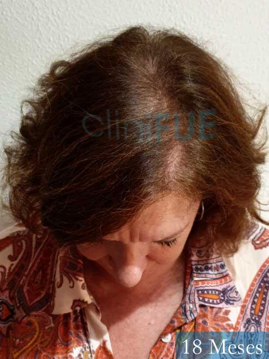 M-Angeles-52-Cadiz-trasplante-capilar-femenino-turquia-18-meses-2