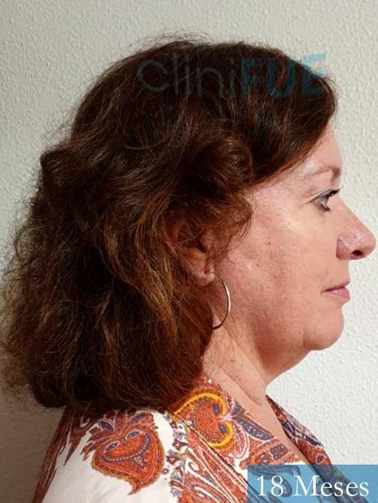 M-Angeles-52-Cadiz-trasplante-capilar-femenino-turquia-18-meses-3