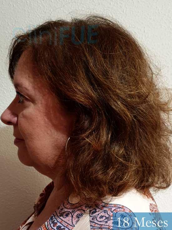 M-Angeles-52-Cadiz-trasplante-capilar-femenino-turquia-18-meses-4