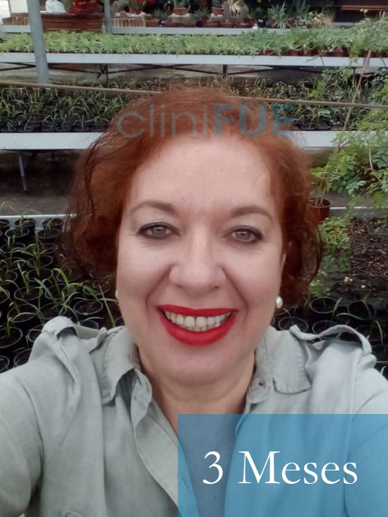 M-Angeles-52-Cadiz-trasplante-capilar-femenino-turquia-3-meses-1