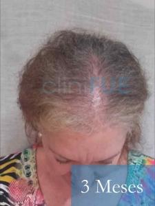 M-Angeles-52-Cadiz-trasplante-capilar-femenino-turquia-3-meses-2