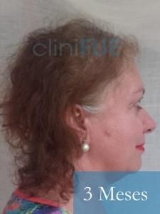 M-Angeles-52-Cadiz-trasplante-capilar-femenino-turquia-3-meses-3