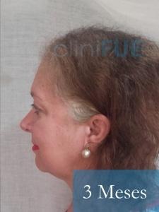 M-Angeles-52-Cadiz-trasplante-capilar-femenino-turquia-3-meses-4