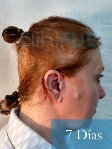 M-Angeles-52-Cadiz-trasplante-capilar-femenino-turquia-7-dias-3