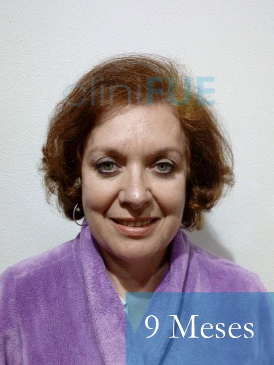M-Angeles-52-Cadiz-trasplante-capilar-femenino-turquia-9-meses-1