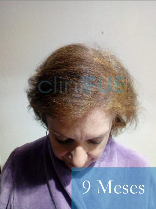 M-Angeles-52-Cadiz-trasplante-capilar-femenino-turquia-9-meses-2