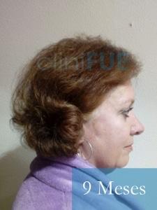 M-Angeles-52-Cadiz-trasplante-capilar-femenino-turquia-9-meses-4