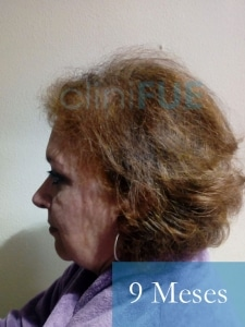 M-Angeles-52-Cadiz-trasplante-capilar-femenino-turquia-9-meses-5