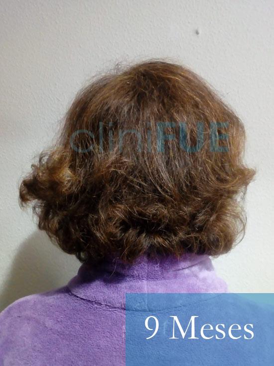 M-Angeles-52-Cadiz-trasplante-capilar-femenino-turquia-9-meses-6