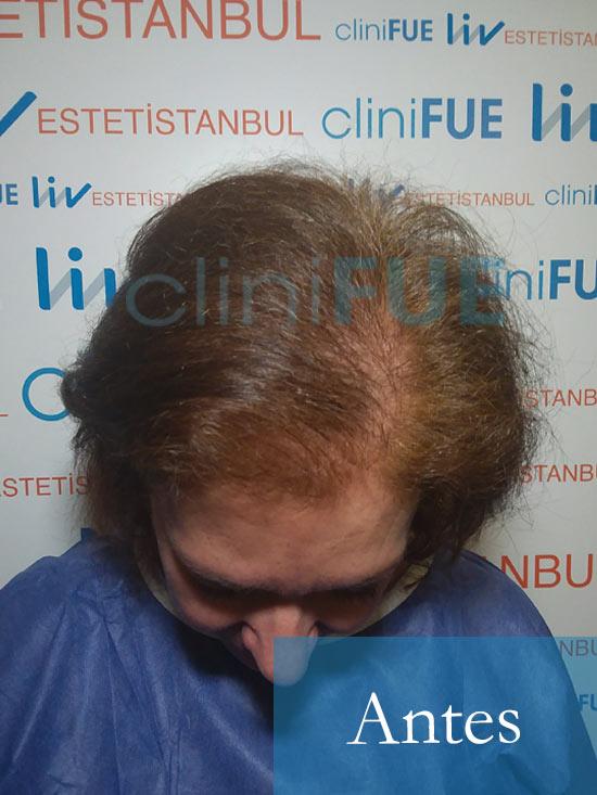 M-Angeles-52-Cadiz-trasplante-capilar-femenino-turquia-Dia-Operacion-4