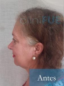 M-Angeles-52-Cadiz-trasplante-capilar-femenino-turquia-Antes-de-la-operacion-4