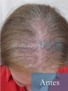M-Angeles-52-Cadiz-trasplante-capilar-femenino-turquia-Antes-de-la-operacion-2