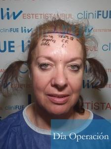 M-Angeles-52-Cadiz-trasplante-capilar-femenino-turquia-Dia-Operacion-2