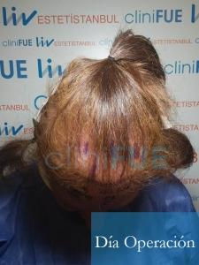 M-Angeles-52-Cadiz-trasplante-capilar-femenino-turquia-Dia-Operacion-3