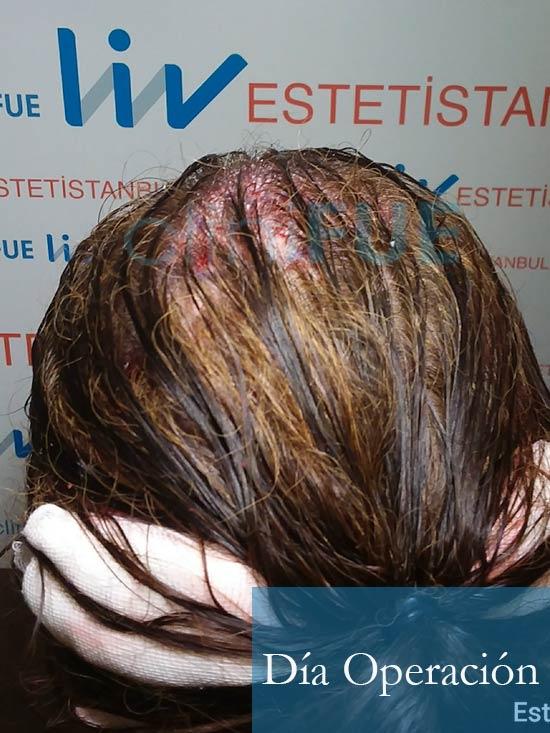 M-Angeles-52-Cadiz-trasplante-capilar-femenino-turquia-Dia-Operacion-5