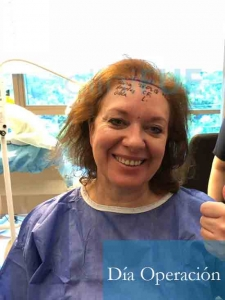 M-Angeles-52-Cadiz-trasplante-capilar-femenino-turquia-Dia-Operacion-1