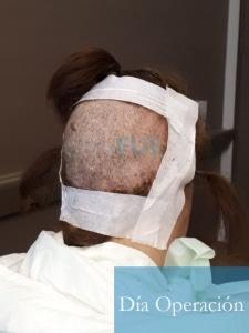 M-Angeles-52-Cadiz-trasplante-capilar-femenino-turquia-Dia-Operacion-8