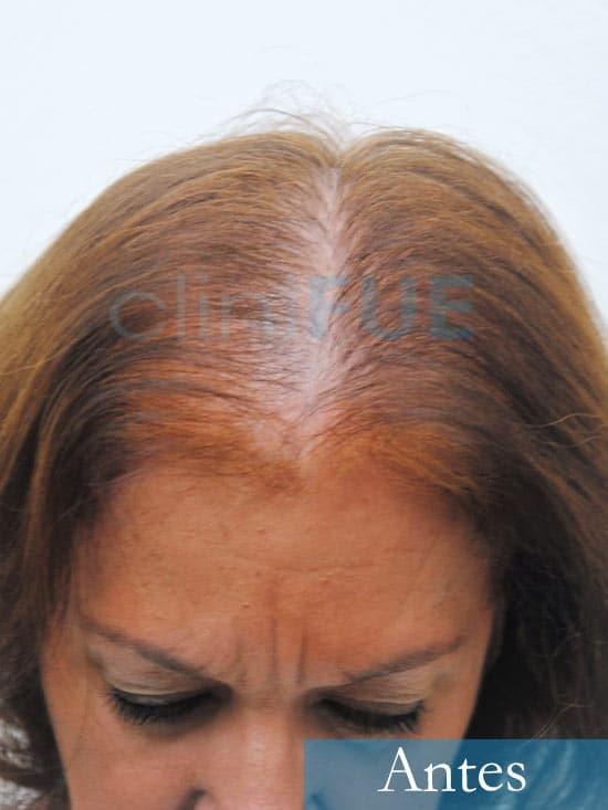 M-Angeles-52-Cadiz-trasplante-capilar-femenino-turquia-Antes-de-la-operacion-1