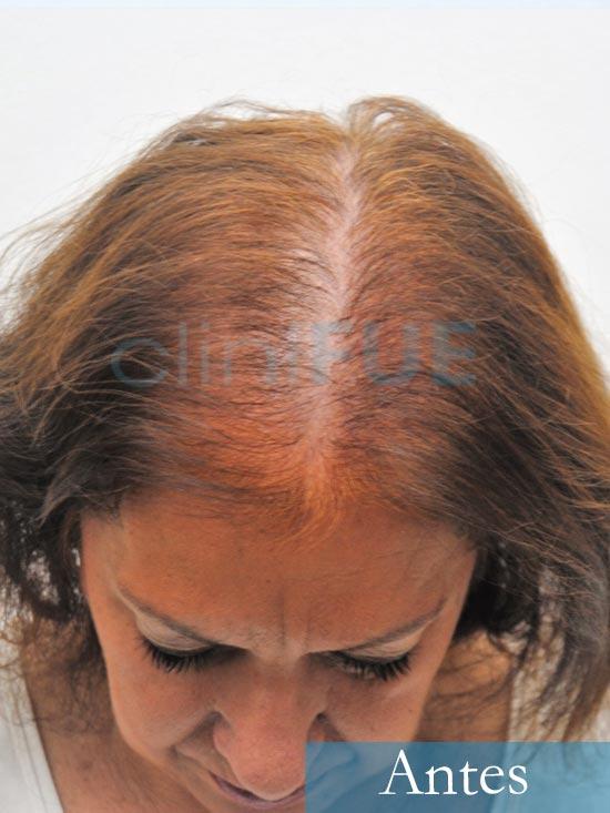 M-Angeles-52-Cadiz-trasplante-capilar-femenino-turquia-Antes-de-la-operacion-3