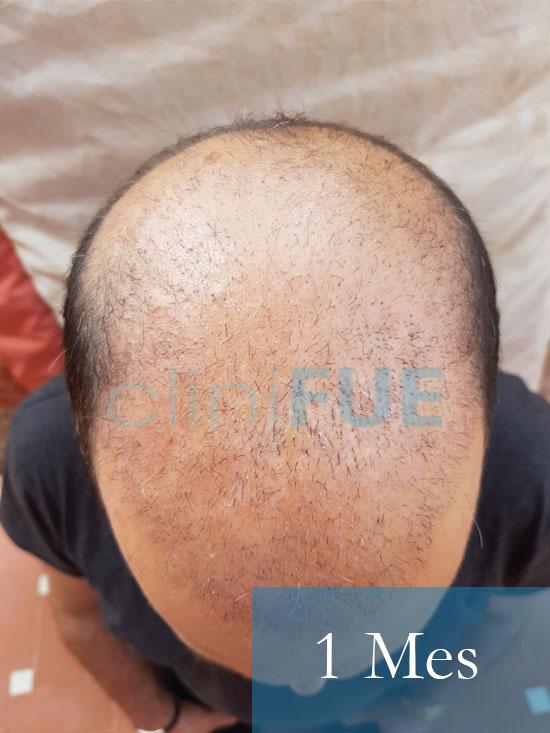 Paco 40 Albacete trasplante capilar 1 mes 2