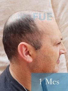 Paco 40 Albacete trasplante capilar 1 mes 3