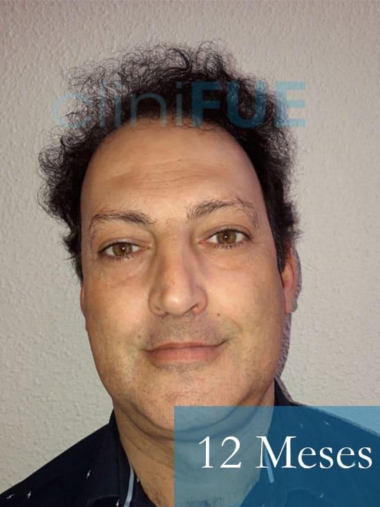 Paco 40 Albacete trasplante capilar 12 meses 1