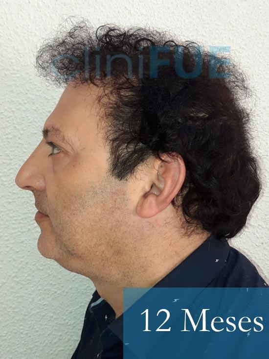 Paco 40 Albacete trasplante capilar 12 meses 3