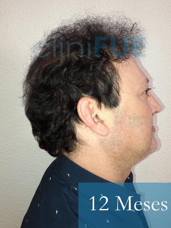 Paco 40 Albacete trasplante capilar 12 meses 2