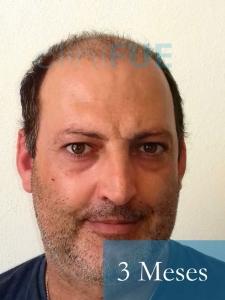 Paco 40 Albacete trasplante capilar 3 mes 1