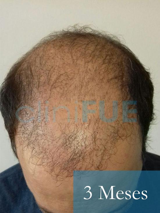 Paco 40 Albacete trasplante capilar 3 mes 2
