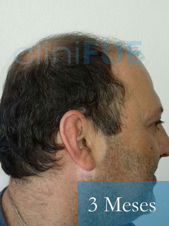 Paco 40 Albacete trasplante capilar 3 mes 3