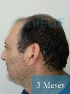 Paco 40 Albacete trasplante capilar 3 mes 4
