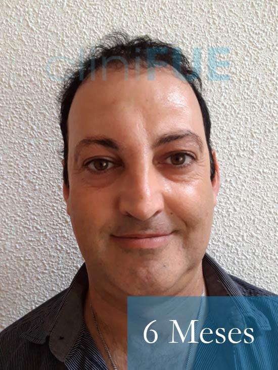 Paco 40 Albacete trasplante capilar 6 meses 1