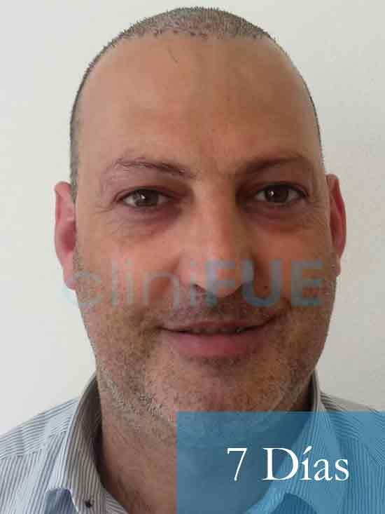 Paco 40 Albacete trasplante capilar 7 dias 1