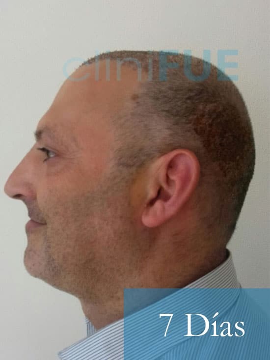 Paco 40 Albacete trasplante capilar 7 dias 4
